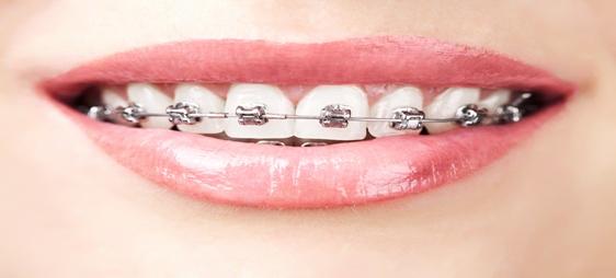יישור שיניים עם גשר ממתכת