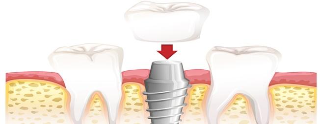 כתרים לשיניים