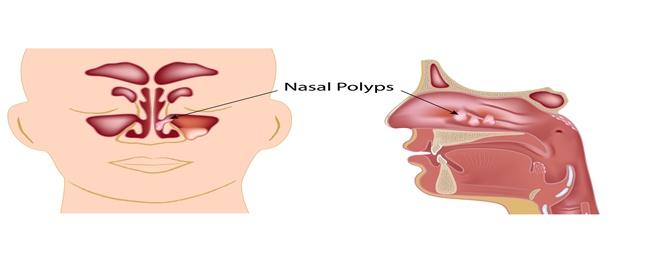 פוליפים באף