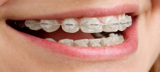 יישור שיניים שקוף