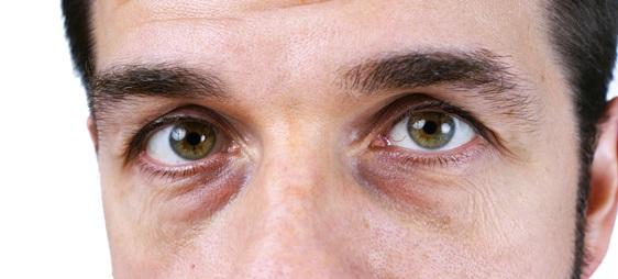 שקיות מתחת לעיניים