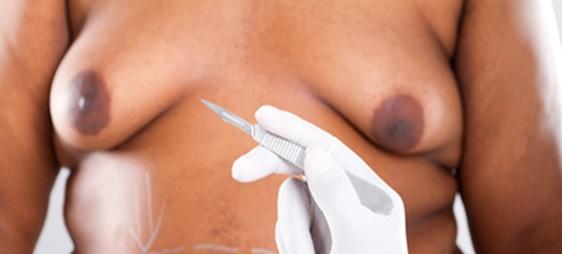ניתוח הקטנת חזה לגברים
