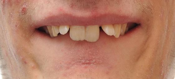 שיניים בולטות