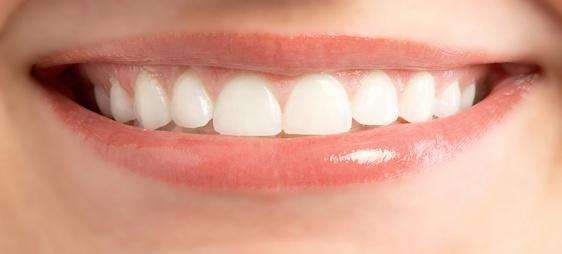 הלבנת שיניים שיטות