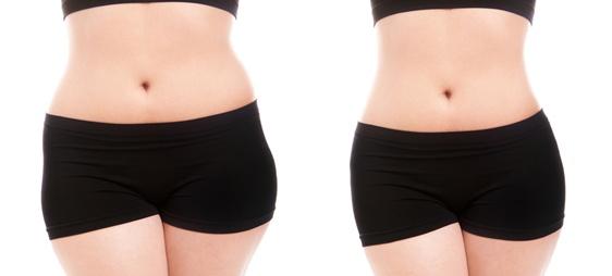 המסה של שומן ללא ניתוח