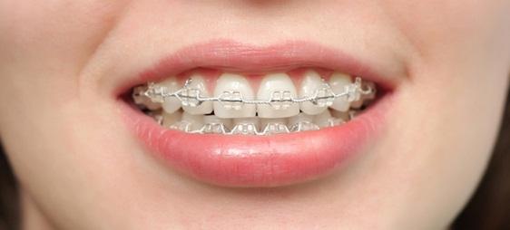 מהו בעצם יישור השיניים השקוף