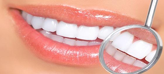 כל מה שצריך לדעת על הבהרת שיניים