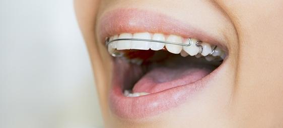 מהם יתרונותיה של הפלטה לשיניים