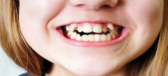 למה ליישר שיניים לילדים כמה שיותר מוקדם