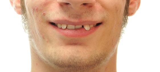 כיצד מיישרים שיניים בולטות