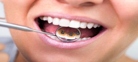 למה דווקא יישור שיניים פנימי