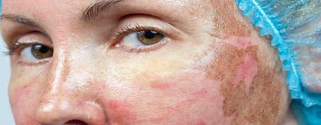 זיהומים לאחר טיפול פילינג