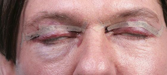 פגיעה בראייה כתוצאה של עפעפיים צונחים