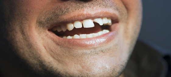 תיקון שברים בשיניים