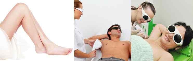 טיפולי הסרת שיער בבאר שבע